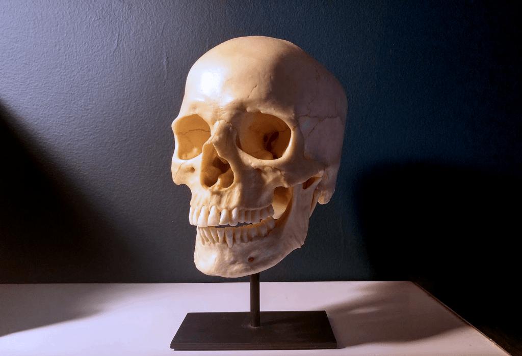 photo of a human skull